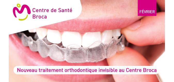 Le Centre de Santé Broca se dote d'Invisalign, traitement orthodontique invisible